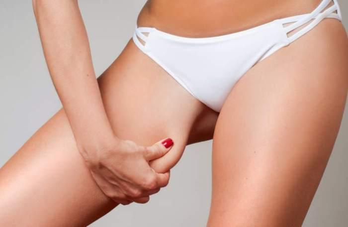 Cellulit na udach – jak się go pozbyć?