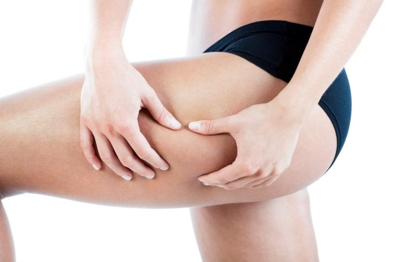 Usuwanie cellulitu – jak skutecznie usunąć cellulit?